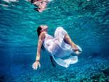 Dzerot par maz ūdens, tu vari dehidrēt arī savu intīmo vietiņu