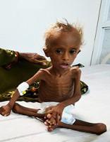 Vienas sievietes cīņa pret badu Jemenā