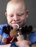 Burvji un alkatīgi radinieki: Āfrikas albīnu klusie slepkavas