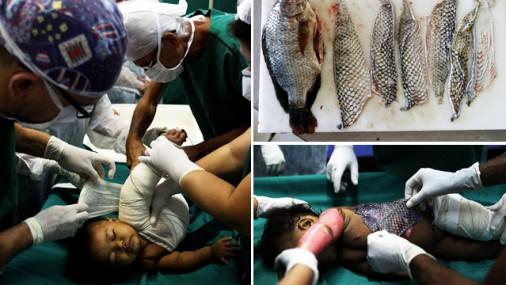Revolucionāra alternatīva: Brazīlijā smagus apdegumus ārstē ar tilapijas ādu