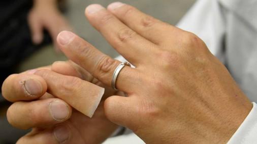 Протезирование отрезанных якудзой пальцев