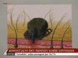 Ogres TV: Latvija parādījusies suņiem bīstamā piroplazmoze