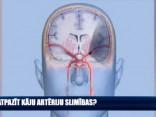 Kā atpazīt kāju artēriju slimības?